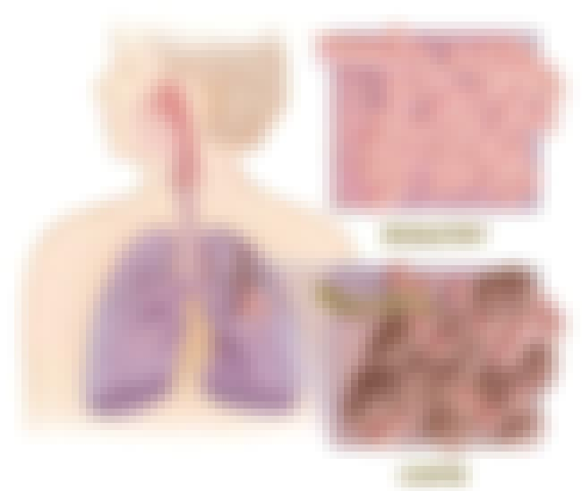 Chronic Obstructive Pulmonary ... is listed (or ranked) 7 on the list 50 Most Common Causes Of Death