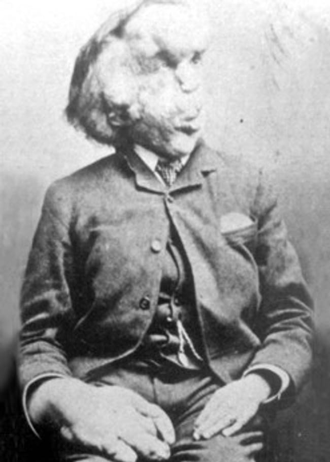 Joseph Merrick is listed (or ranked) 16 on the list 16 Famous People Who Probably Died as Virgins