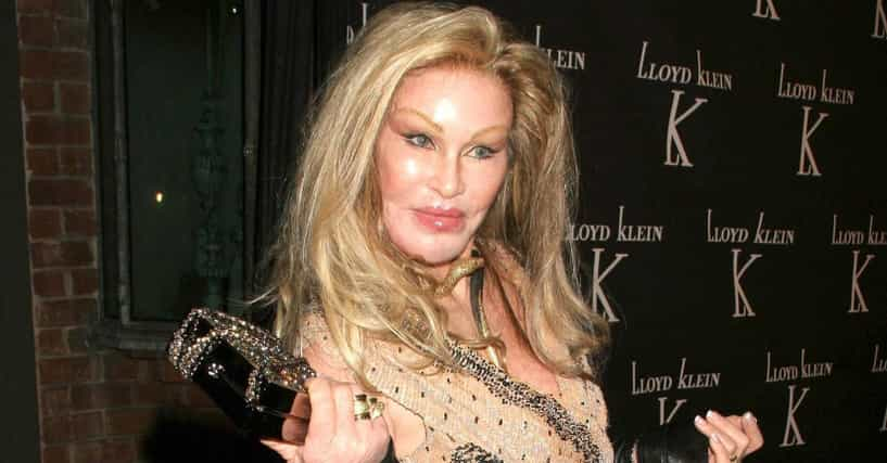 Plastic Surgeries Gone Wrong List Of Celebs Who Look