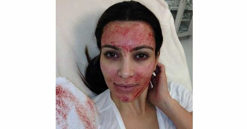 Weird Beauty Treatments That Celebrities Are Getting