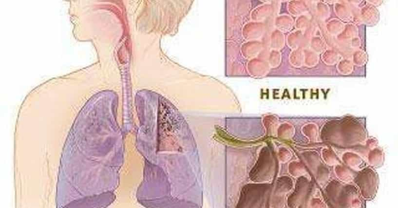 copd and lung cancer relationship horoscope