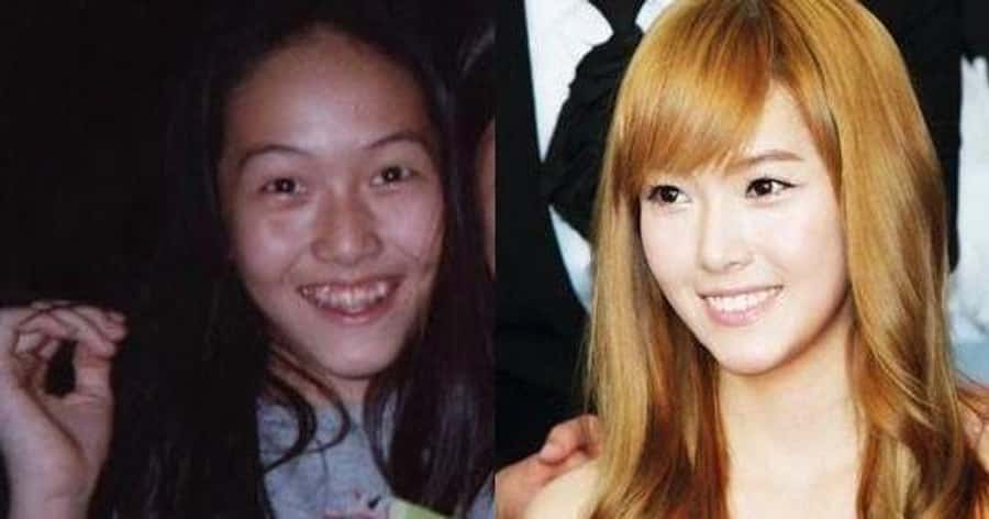 K Pop Female Idols Before And After Plastic Surgery