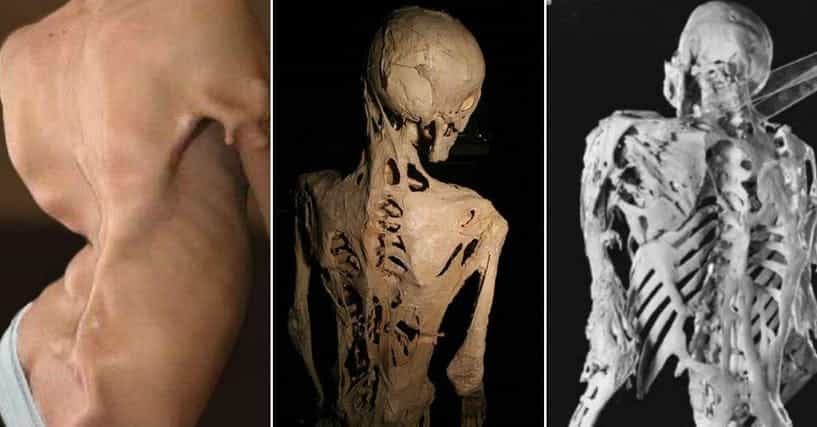 The 13 Rarest And Most Gruesome Genetic Diseases Known to Man