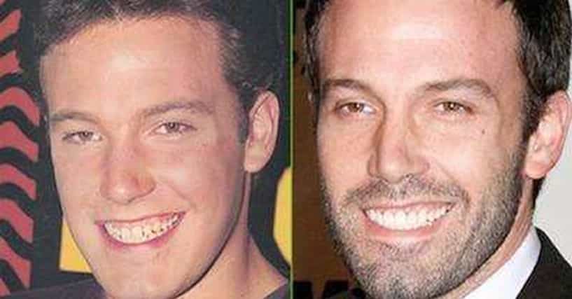 Gross celebrity teeth before and after photos