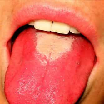 Strawberry tongue