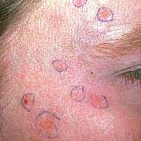 Actinic keratosis is listed (or ranked) 2 on the list Risks Unique to Being Male