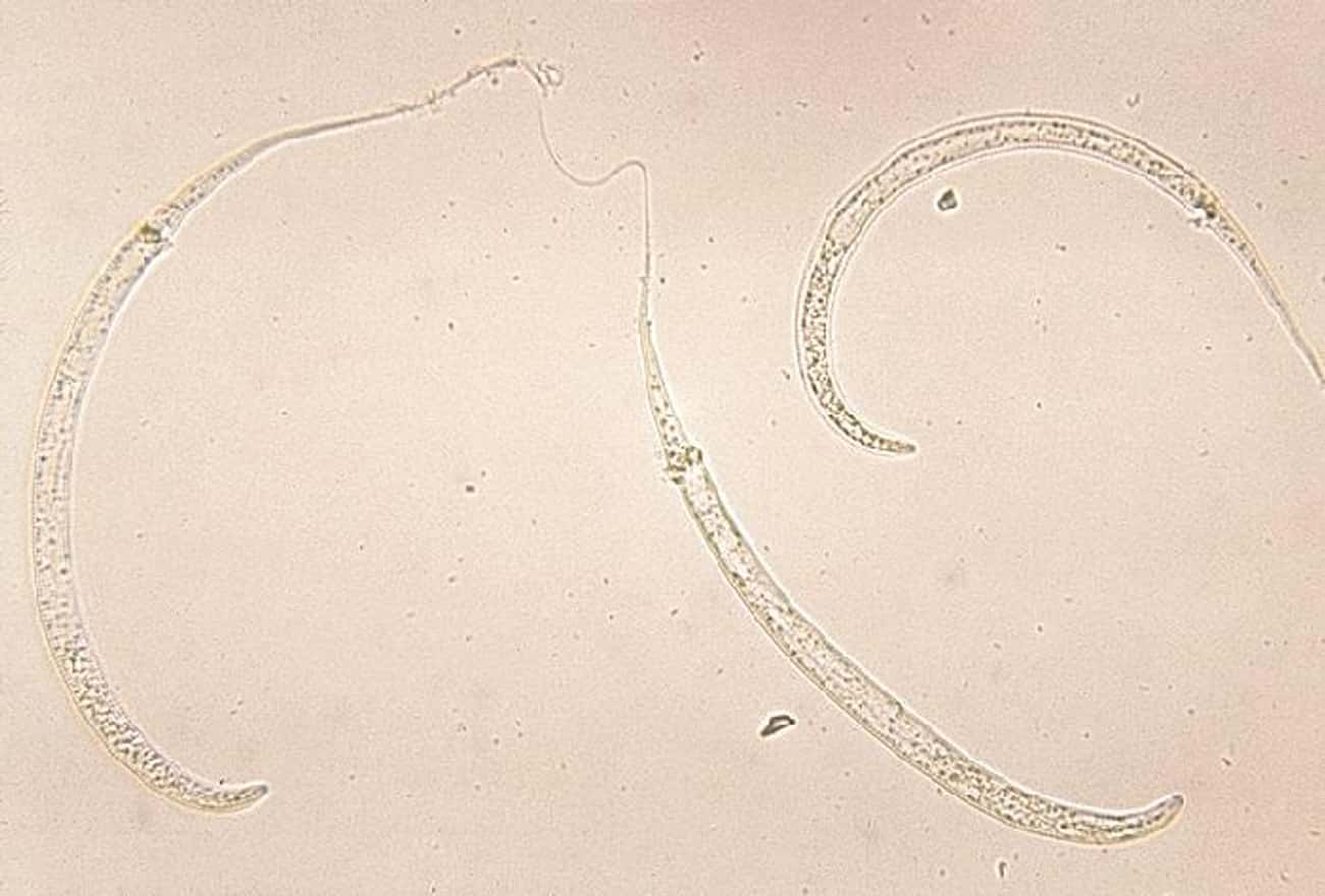 Guinea Worm is listed (or ranked) 2 on the list The Craziest Parasite Life Cycles
