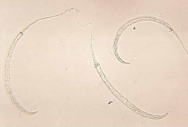 Dracunculus medinensis is listed (or ranked) 2 on the list The Craziest Parasite Life Cycles