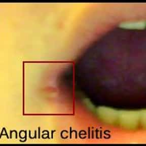 Angular cheilitis is listed (or ranked) 1 on the list Symptoms of Folic Acid Deficiency Anemia