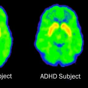 Attention deficit hyperactivit is listed (or ranked) 4 on the list List of Common Diseases: Most Common Illnesses