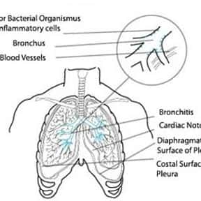 Acute bronchitis is listed (or ranked) 2 on the list List of Diseases Caused by Smoking Cigarettes