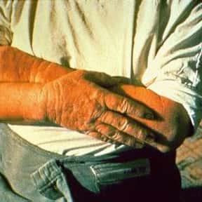 Dermatitis is listed (or ranked) 4 on the list Symptoms of Kwashiorkor