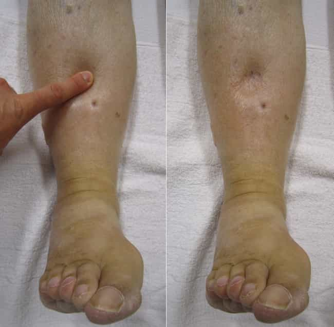 Edema is listed (or ranked) 2 on the list Lymphatic Disease List