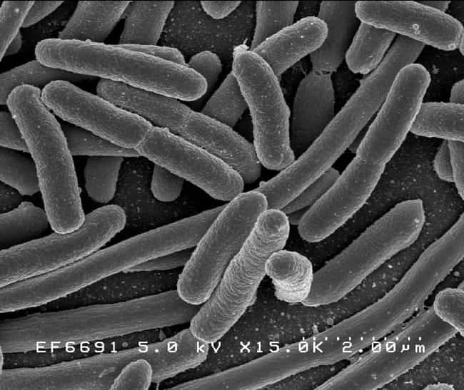 Escherichia coli is listed (or ranked) 4 on the list Disgusting Images of Microorganisms That Are on You Right Now