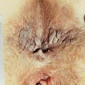 oral sex Genital warts by