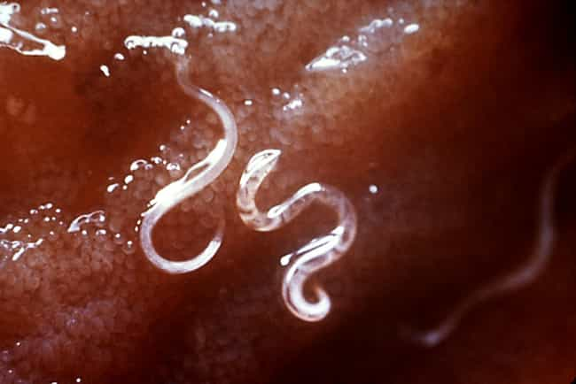 Hookworm is listed (or ranked) 3 on the list Scary Diseases You Can Get from Your Pets