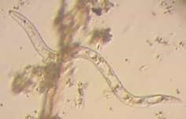 Nematode is listed (or ranked) 2 on the list These Animals Can Survive Being Eaten Alive