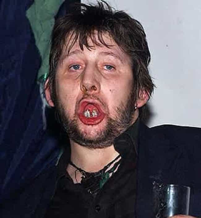 WHO IS WHO - Página 2 Shane-macgowan-recording-artists-and-groups-photo-u1?w=650&q=50&fm=pjpg&fit=crop&crop=faces