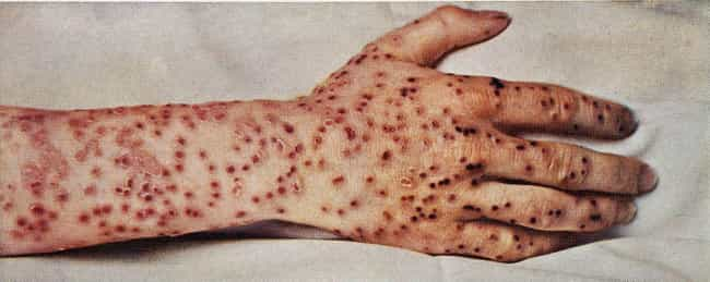 Smallpox is listed (or ranked) 2 on the list How Long Do These Diseases And Viruses Live In Your Body After You Die?