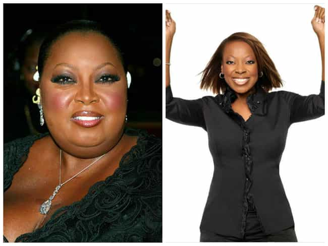 35 Celebrities Who Had Weight Loss Surgery Page 2
