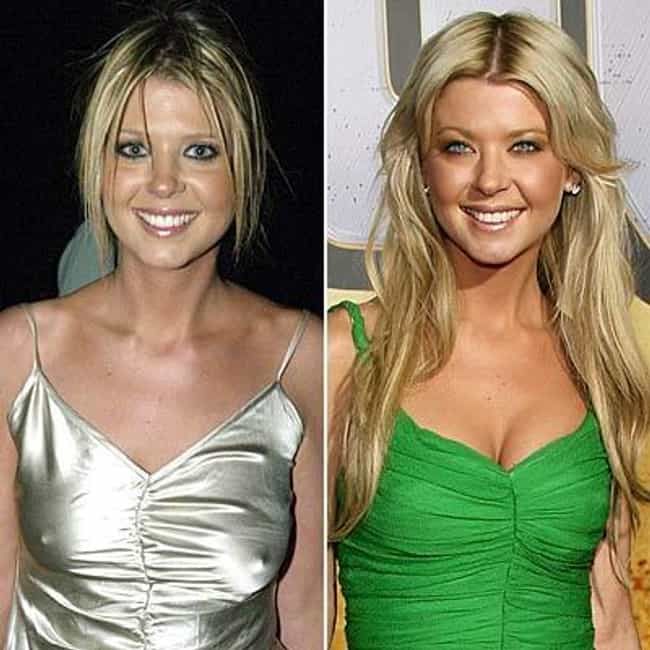 Tara Reid is listed (or ranked) 4 on the list Celebrities Who Look Worse After Plastic Surgery