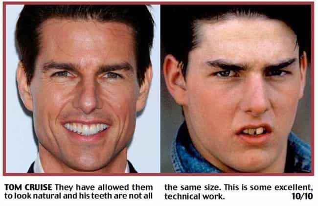 Tom Cruise Is Listed Or Ranked 1 On The List Celebrities With Fake Teeth