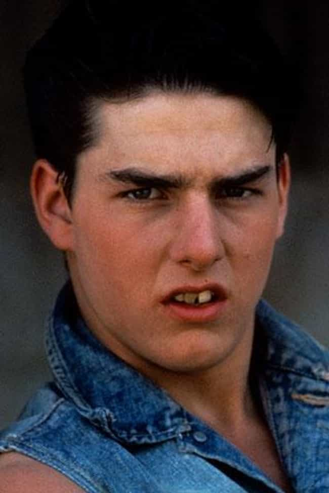 Tom Cruise is listed (or ranked) 2 on the list 15 Celebrities With Chipped Teeth