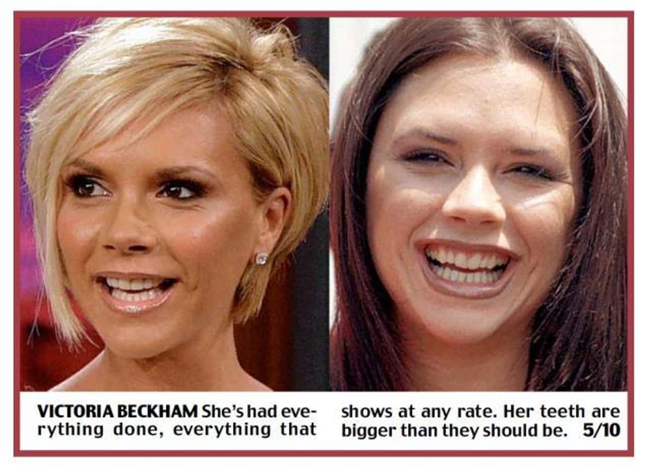 Victoria Beckham is listed (or ranked) 4 on the list Celebrities With Fake Teeth