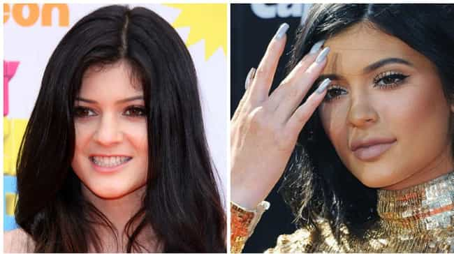 Kylie Jenner is listed (or ranked) 2 on the list Celebrities Whose Faces Totally Changed