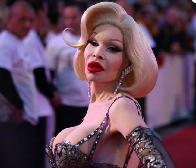 Amanda Lepore is listed (or ranked) 1 on the list 20 Celebs Who Lost Their Sex Appeal After Plastic Surgery