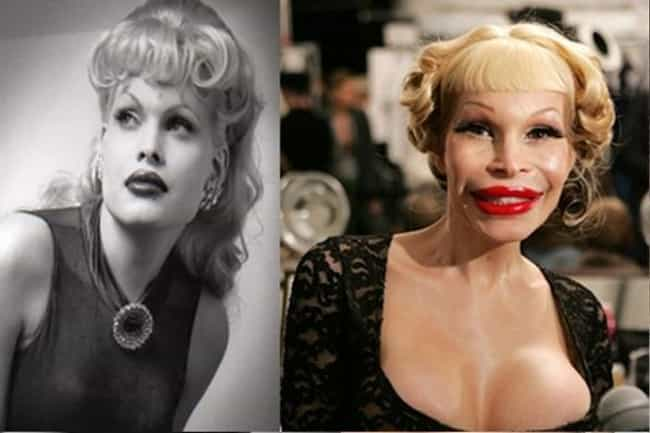 Amanda Lepore is listed (or ranked) 3 on the list 27 Celebs Who Lost Their Sex Appeal After Plastic Surgery