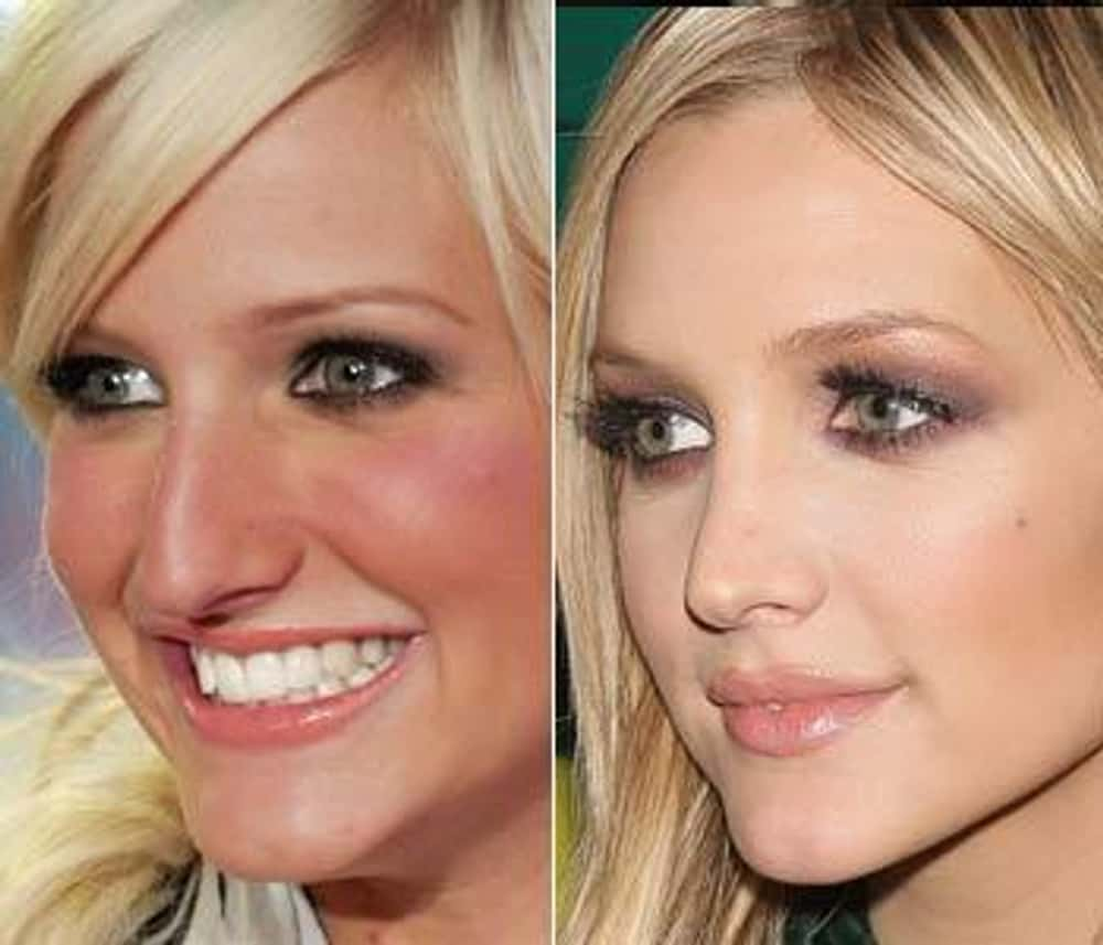 Ashlee Simpson is listed (or ranked) 1 on the list Celebrity Nose Jobs: Before and After