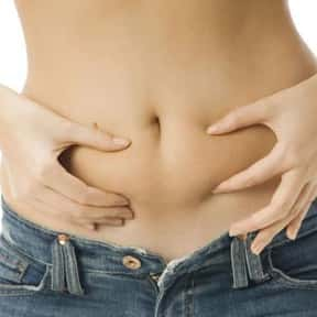 Bloating is listed (or ranked) 2 on the list Symptoms of Ovarian Cancer