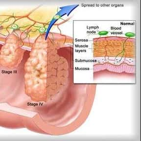 Bone Cancer is listed (or ranked) 22 on the list List of Common Diseases: Most Common Illnesses