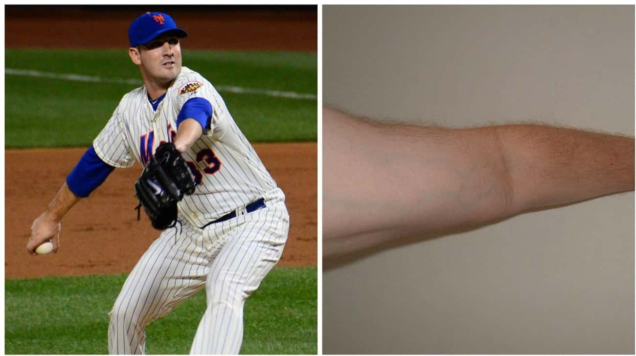 Matt Harvey is listed (or ranked) 1 on the list Celebs Who Insured Body Parts