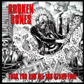 Broken Bones is listed (or ranked) 24 on the list The Best Street Punk Bands