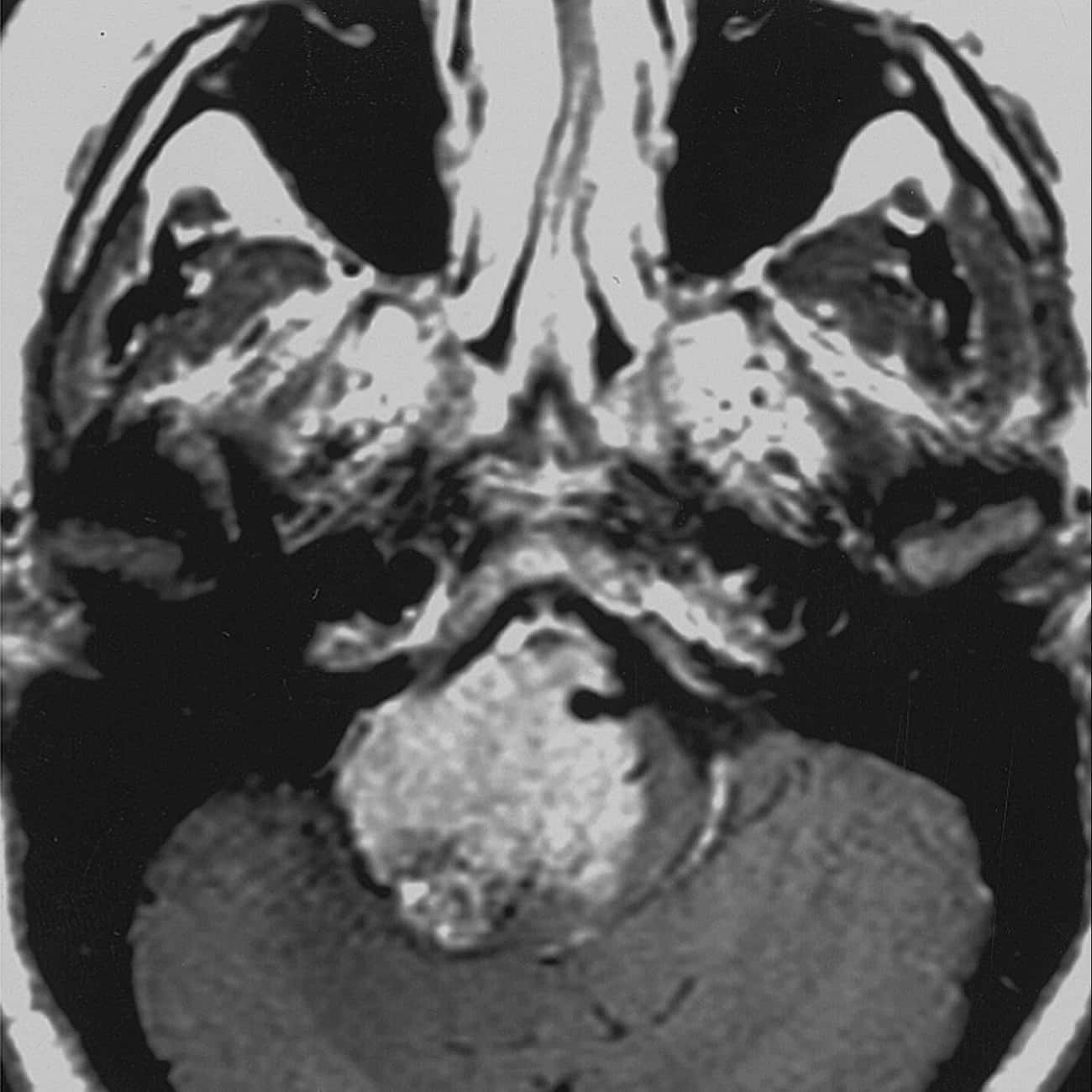 Choroid Plexus Papilloma is listed (or ranked) 4 on the list Central Nervous System Diseases & Nerve Disorders