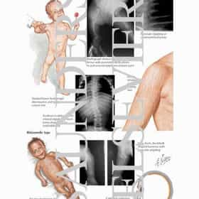 Chondrodysplasia punctata
