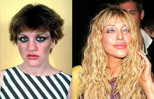 Courtney Love is listed (or ranked) 1 on the list Celebrity Nose Jobs: Before and After