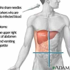 Chronic Hepatitis C