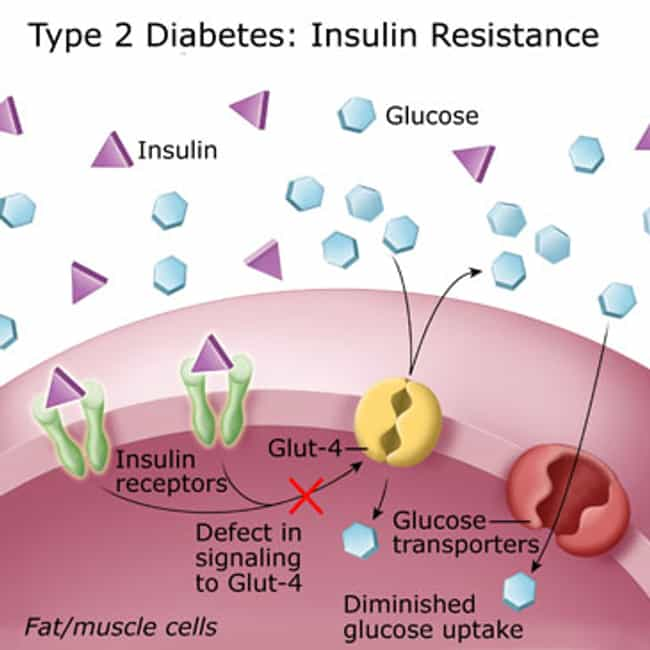 Type 2 diabetes is listed (or ranked) 2 on the list List of Endocrine Disorders