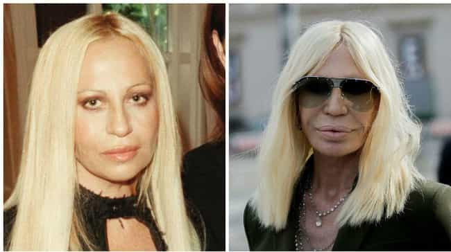 Donatella Versace is listed (or ranked) 4 on the list Celebrities Whose Faces Totally Changed