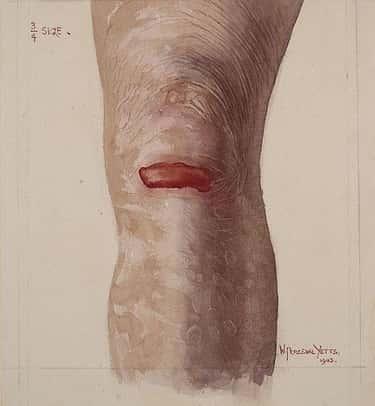 Epidermolysis Bullosa Destroys Skin