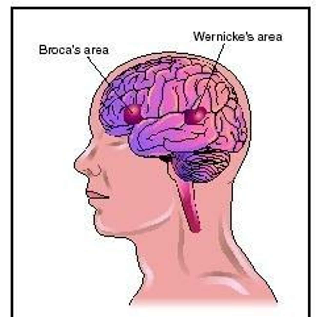 Expressive aphasia is listed (or ranked) 2 on the list Central Nervous System Diseases & Nerve Disorders