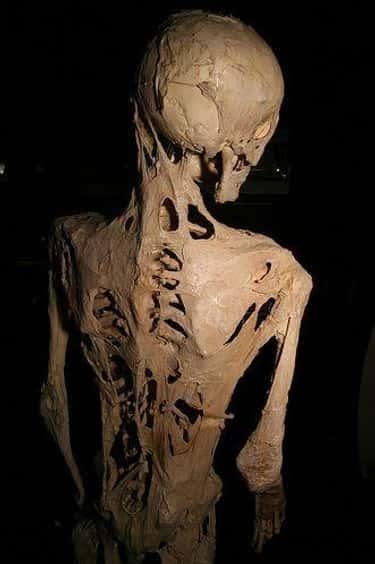 Fibrodysplasia Ossificans Progressiva Replaces Your Muscles With Bone