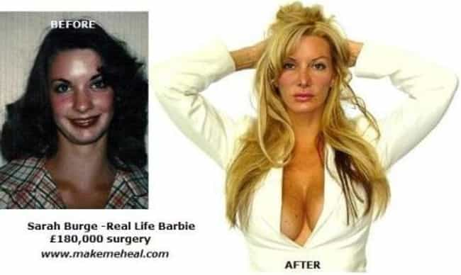 Sarah Burge is listed (or ranked) 4 on the list 13 Biggest Plastic Surgery Addicts
