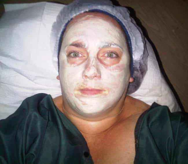 Bird's Dropping Facials - ... is listed (or ranked) 2 on the list The 14 Most Bizarre Beauty Treatments Women Have Ever Used