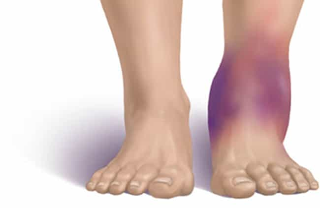 Swelling is listed (or ranked) 2 on the list 10 Telling Symptoms of Kidney Disease