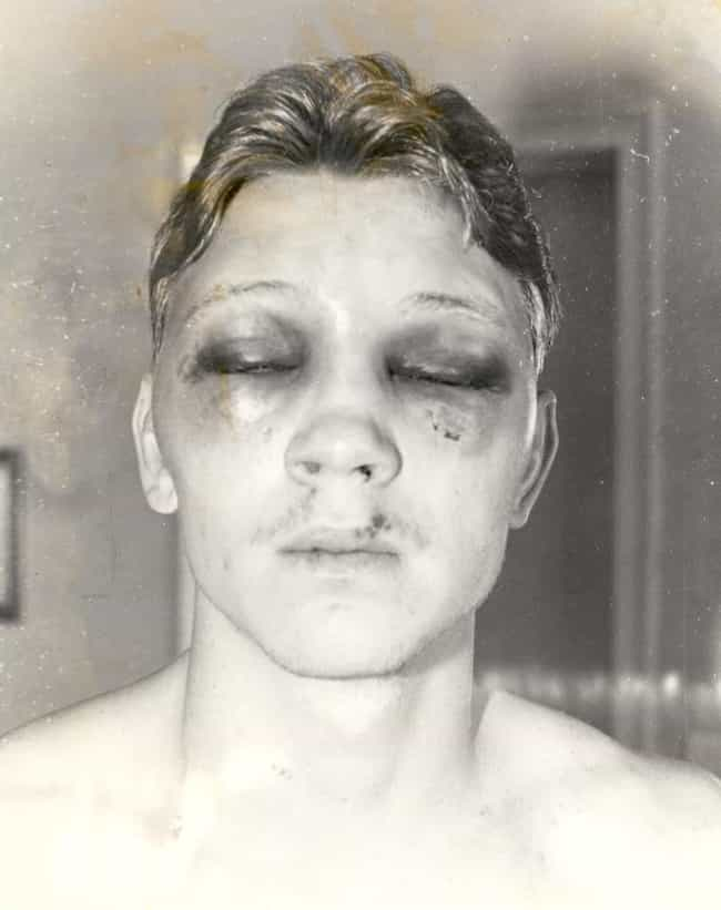 Billy Collins Jr. Is Blinded f... is listed (or ranked) 1 on the list The Biggest Boxing Controversies