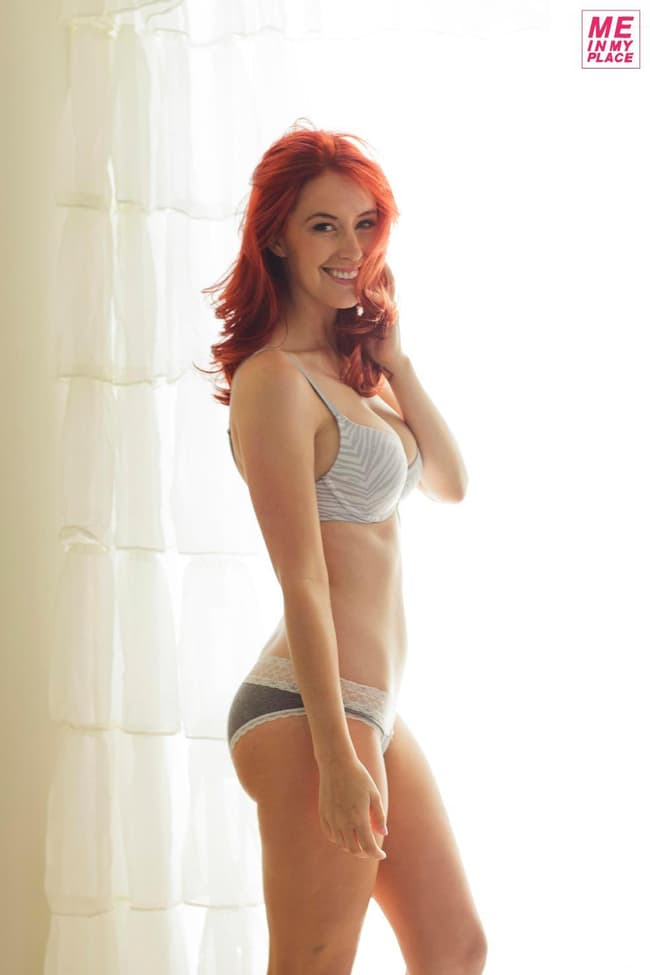 Meg Turney Has More Bruises On Her Legs Than You